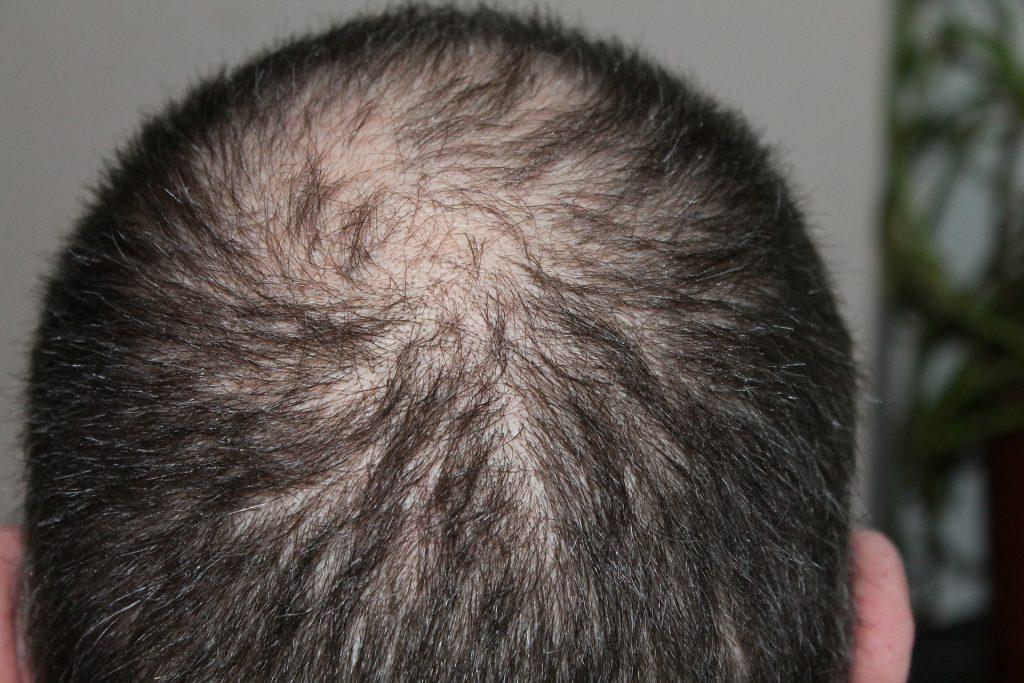 Back of a balding man