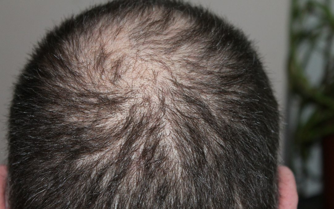 Can Diet Affect Androgenetic Alopecia?